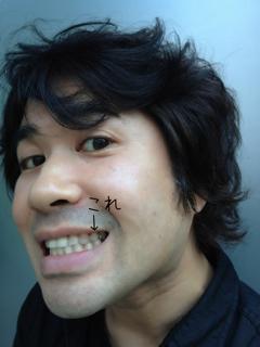 差し歯が抜けたっΣ(゚д゚lll)